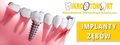 Implanty Mikrostomart Opole